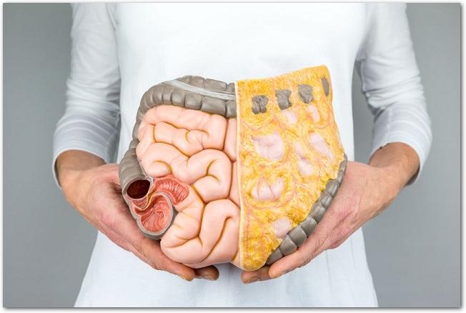 お腹の前に腸の模型を持つ女性の様子